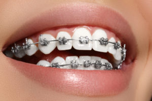 orthodontics san Antonio