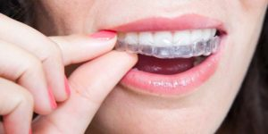 orthodontics- invisalign braces