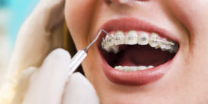 Orthodontist Braces
